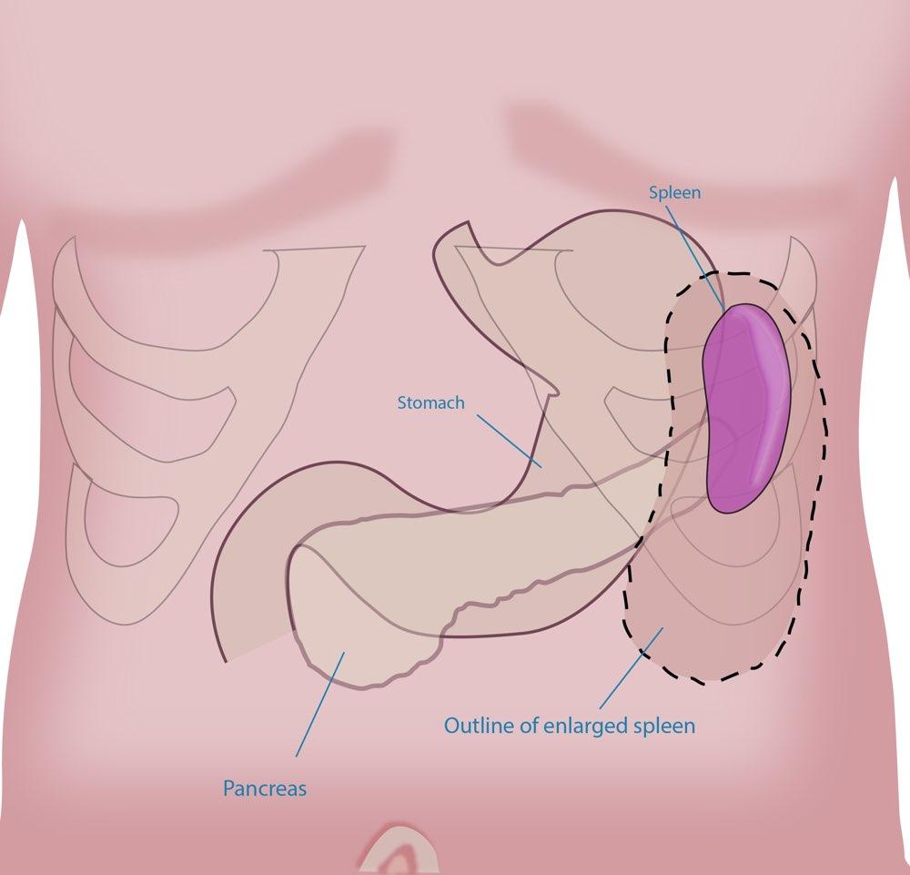 splenectomy