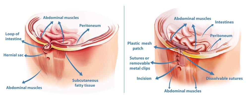Hernia Repair Surgery Perth Surgical Treatment For Hernias