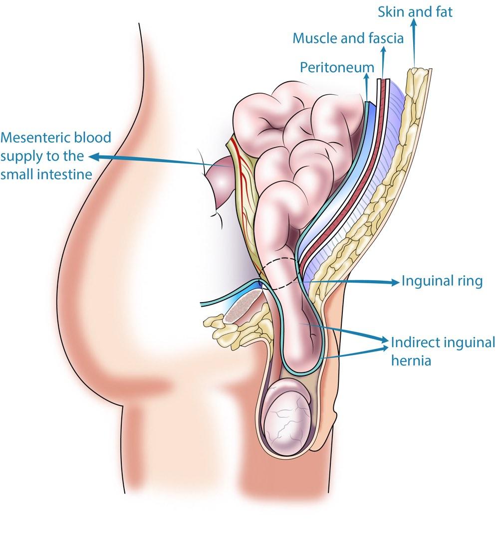 Inguinal Hernia Perth Hernia Repair Surgery Upper Abdominal Surgery