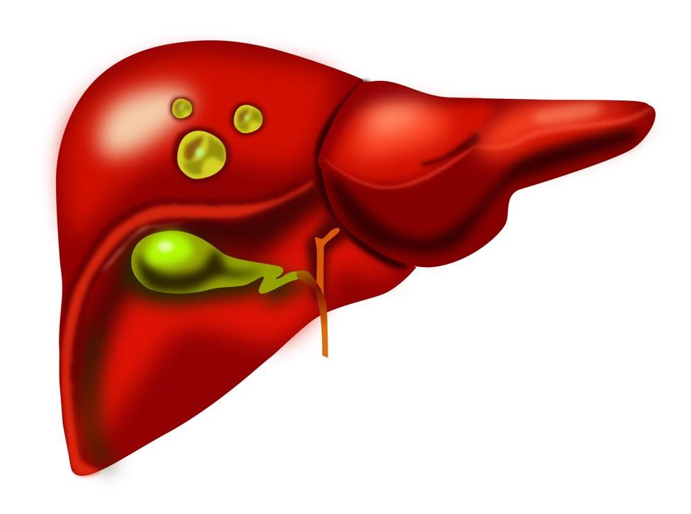 liver cysts