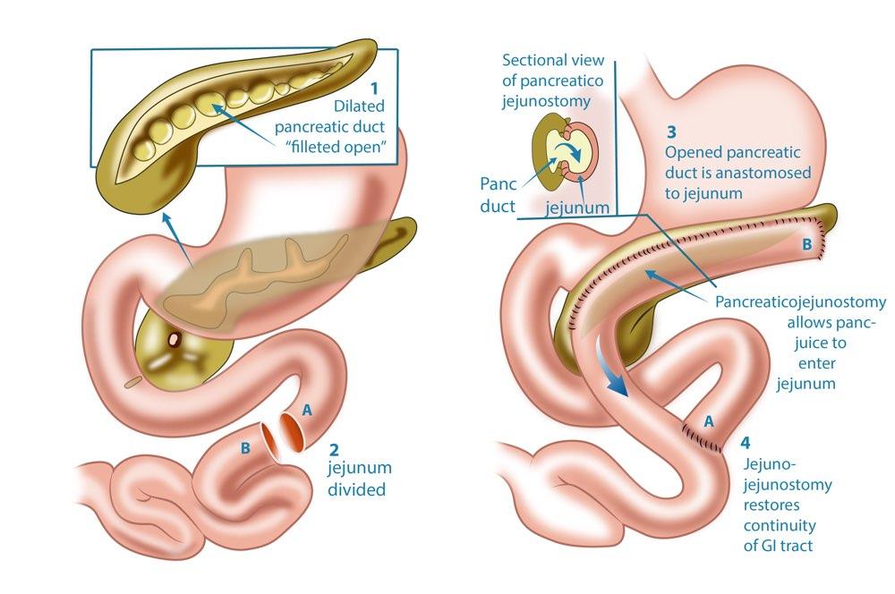 pancreas surgery